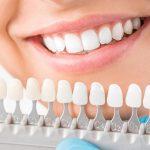 Dentist and Teeth Whitening